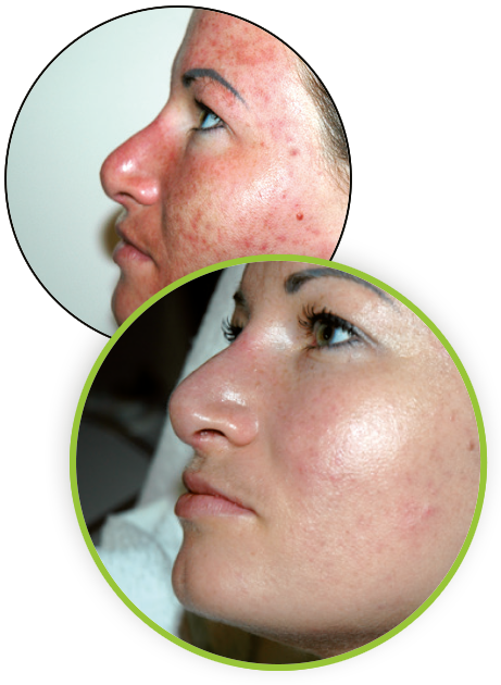 Herbal Aktiv Peel Results